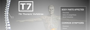 Spinal Injury Information